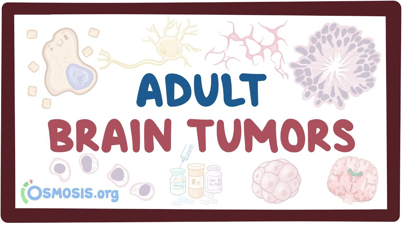 Adult brain tumors - causes, symptoms, diagnosis, treatment, pathology