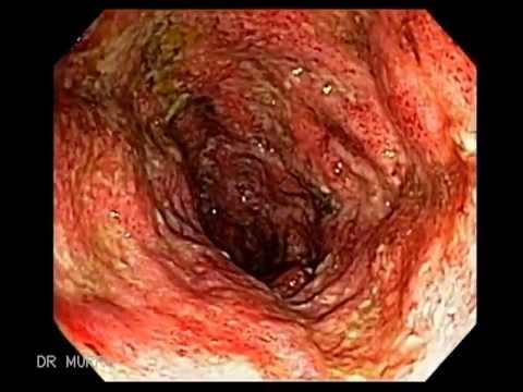 Ulcerative Pancolitis In a young woman of 16 year-old