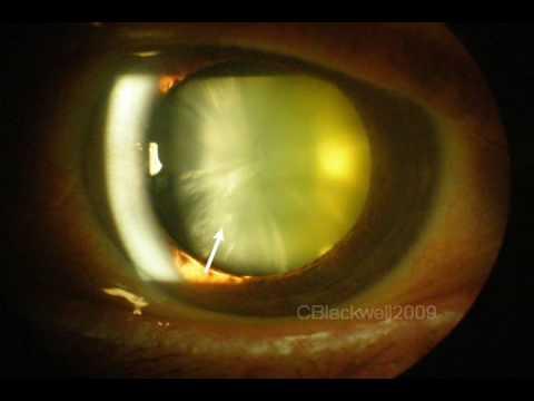 Understanding Cataract Youtube
