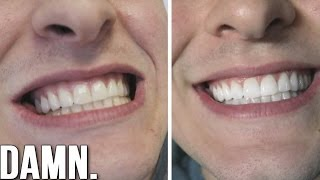 Is Professional Whitening Really Worth It? | MY NO BS TEST!