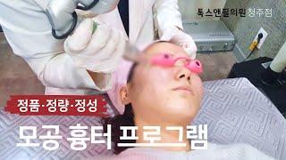 모공스트레스 끝! 모공흉터치료 시술 영상 톡스앤필 청주…