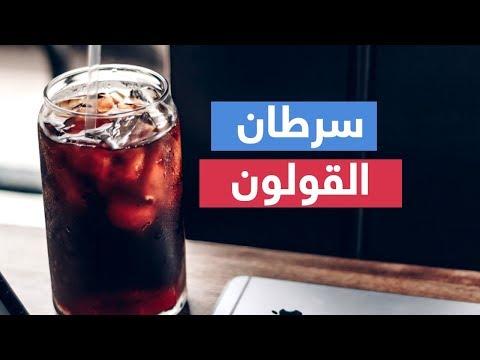 سرطان القولون.. أعراضه وأسبابه وعلاجه  - 09:54-2019 / 1 / 14