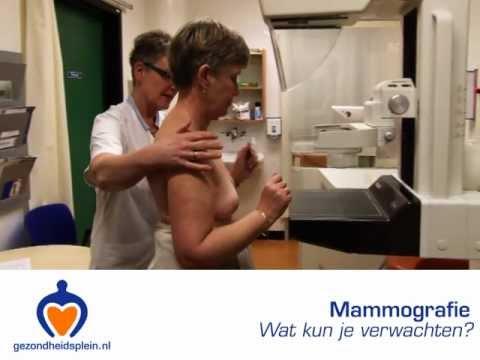Mammografie - Wat kun je verwachten bij dit borstonderzoek?