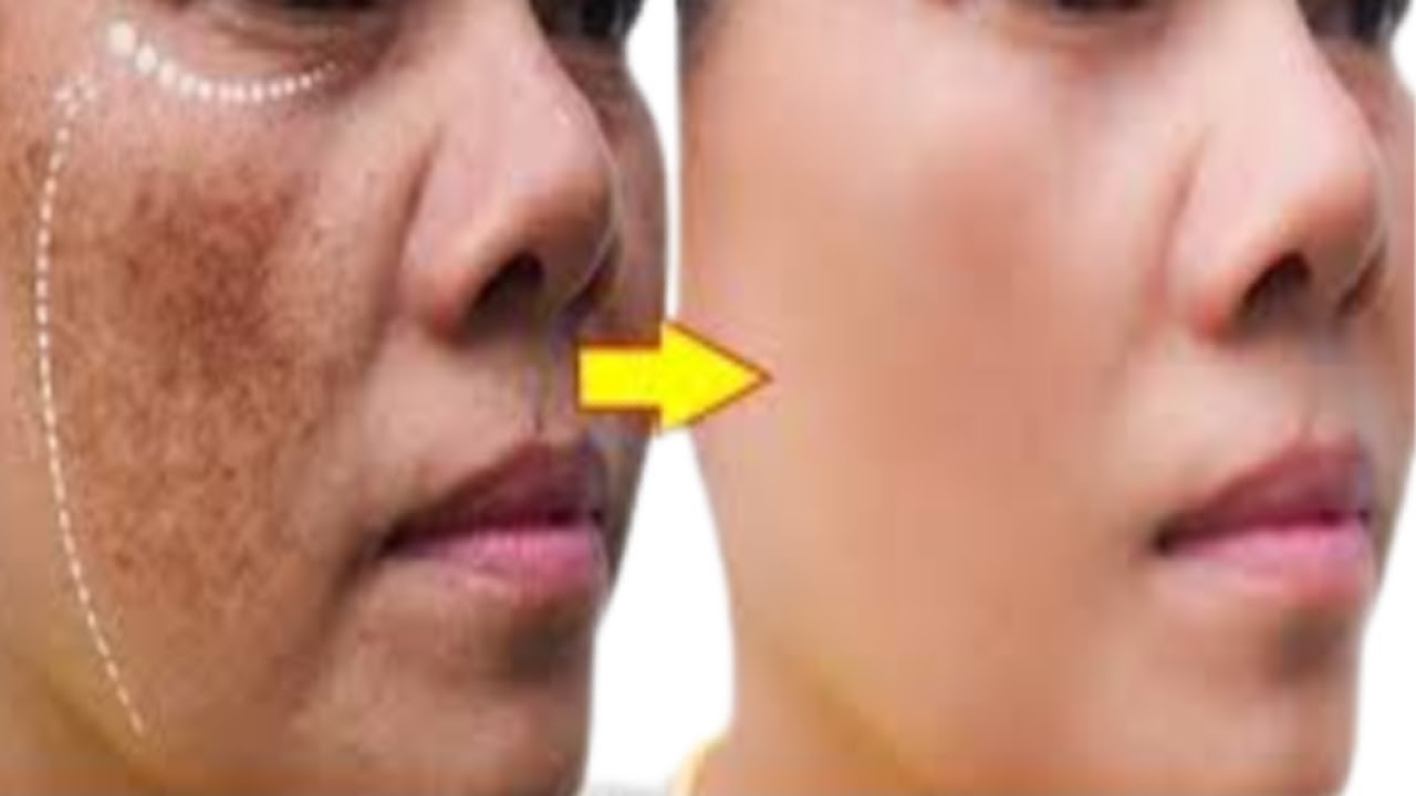 REMOVE FACE PIGMENTATION NATURALLY,  HOME REMEDY FOR BLACK SPOTS,, PIMPLES, BLACKHEAD  + WRINKLES