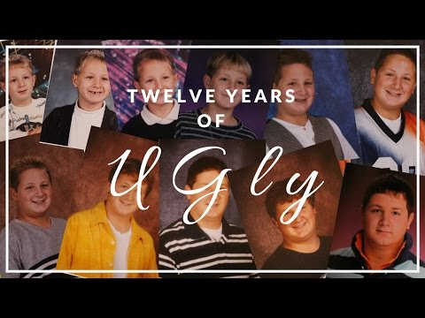 Twelve Years of UGLY| A Look Back| WHITENIGHTMD