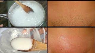 BAKING SODA REMOVE PUIBIC HAIR, 4 DAYS TO COMPLETELY REMOVE PUBIC HAIR NO SHAVING| Khichi Beauty thumbnail