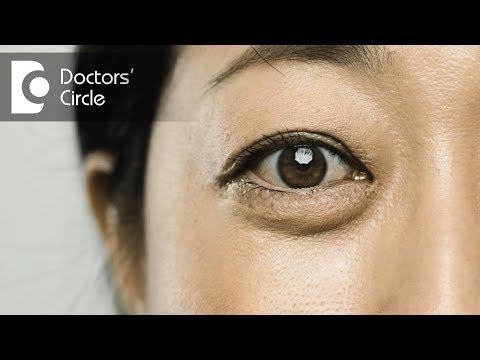 Treatment options for under eye bags or puffiness - Dr. Rashmi Ravindra