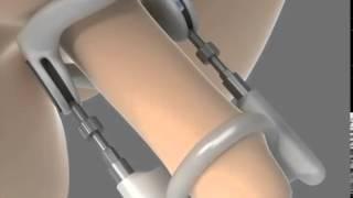 Repeat youtube video Penis Nasıl Büyütülür? - Kadınları Baştan Çıkartın!