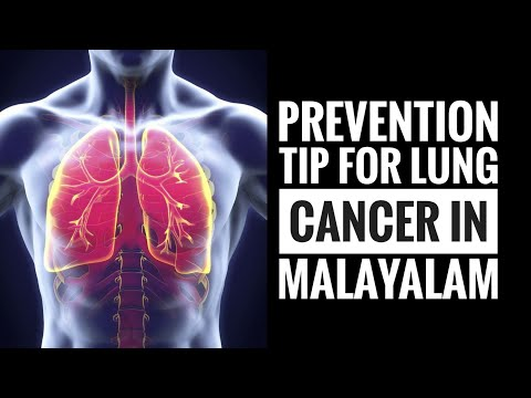 lung-cancer-in-malayalam-|-prevention-tips-for-lung-cancer-|-starline-express-|-aspire-health-spot