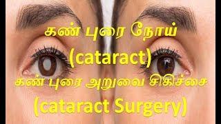 கண் புரை நோய் (CATARACT) -அறிகுறிகள்,கண் புரை அறுவை சிகிச்சை #health