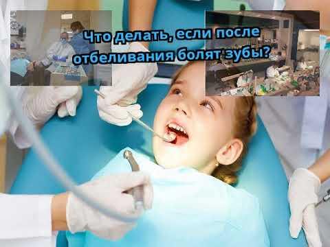 После отбеливания болят зубы