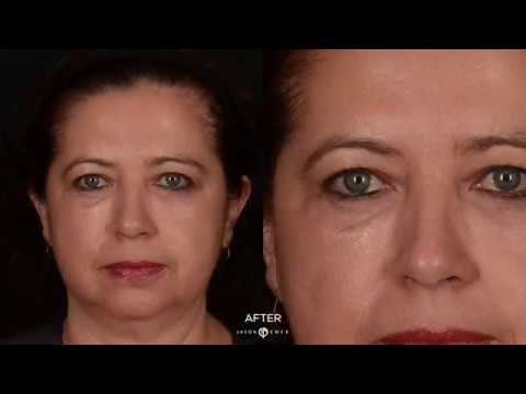 Eye Lift with Renuvion Helium Plasma Technology | Eye Lift Without Surgery by Dr. Jason Emer MD