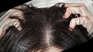 ★머리에 이가 및 니트를 제거하는 방법. 머릿니 치료.…
