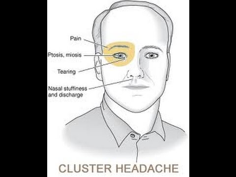 Would You Get Cluster Headaches