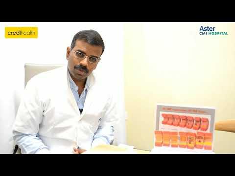 Aster Hospital - Cardiologist Dr. Pradeep Kumar Interview