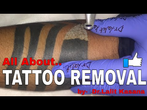 Tattoo Removal And How Laser Tattoo Removal Works