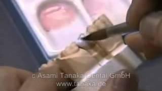 Клиника эстетической стоматологии дентальной имплантации, современные методики протезирования(, 2014-04-03T22:43:33.000Z)