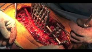 Scoliosis Surgery - Posterior Spinal Instrumented Fusion, Surgeon: Shyam Kishan, MD