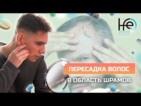Пересадка волос на шрамы | HFE Clinic 6+