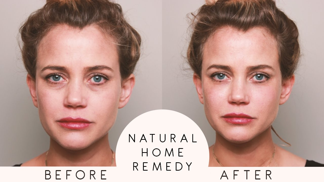 All Natural Remedy For Eye Bags