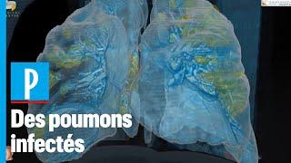 Des poumons infectés par le coronavirus modélisés  en 3D