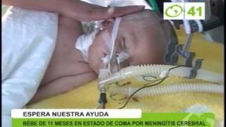 Bebé en estado de coma por meningitis cerebral - Trujillo