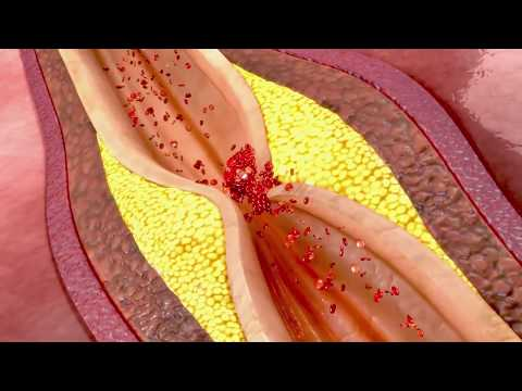 All You Need To Know About Your Endothelium