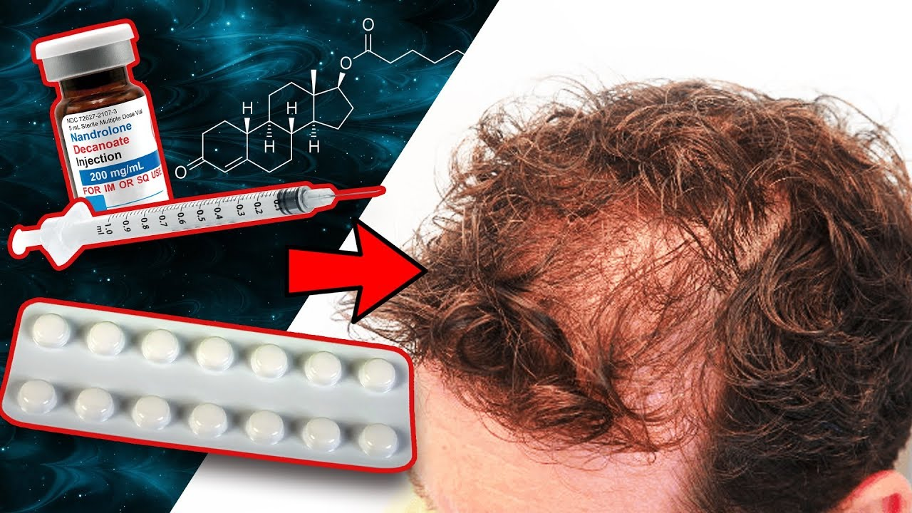 Will Taking Deca With Finasteride Cause Hair Loss