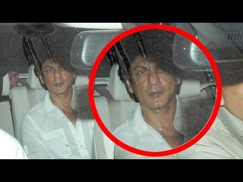 SRK Injured On Sets