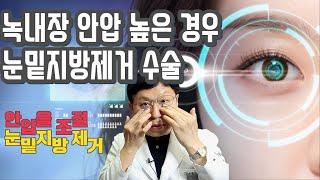 눈밑지방수술 녹내장 안압이 높은 경우 안압을 조절하고 …