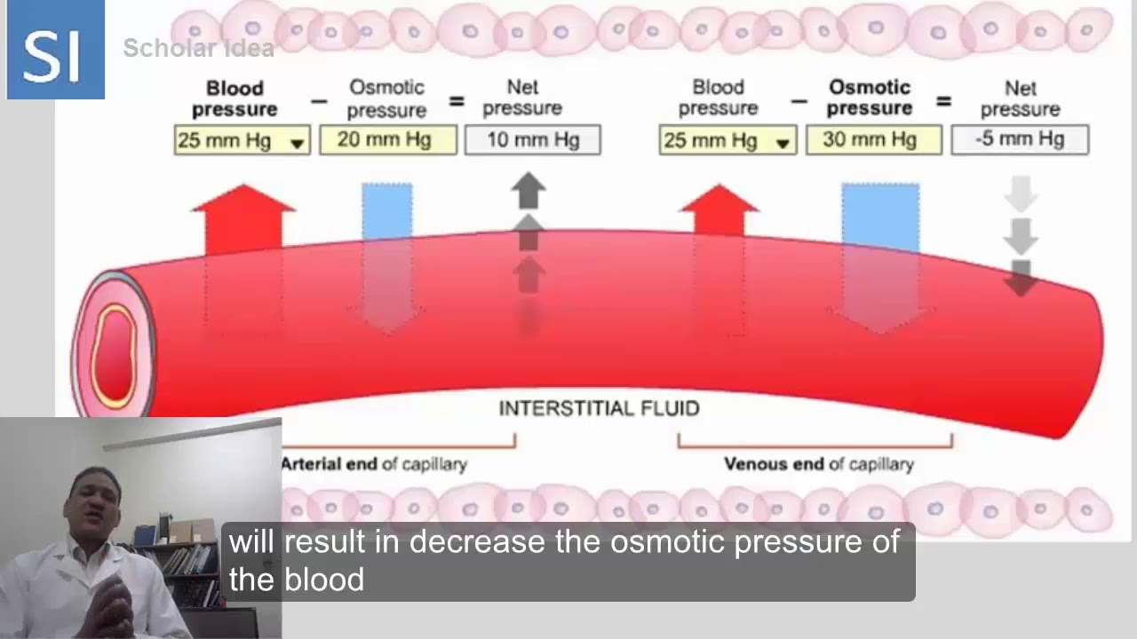 Hydrostatic pressure Vs Oncotic pressure made easy ...