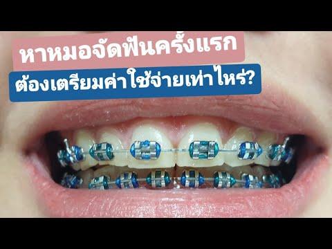 ไปหาหมอจัดฟันครั้งแรก ต้องเตรียมค่าใช้จ่ายเท่าไหร่?