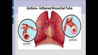 Заняття 2. Бронхіальна астма
