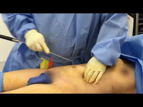 Liposuction of Abdomen and Breast Fat Transfer : Part 2 with Dr. Hughes