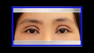 Nguyên nhân mắt bị sưng to sau nhấn mí mắt bạn cần hiểu rõ