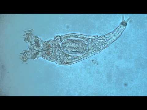 Volvox close up - Flagella movement   Doovi