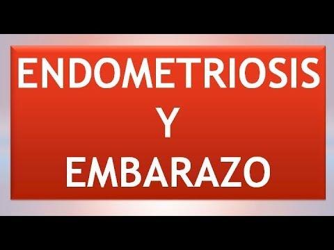 Endometriosis y tratar de quedar embarazada