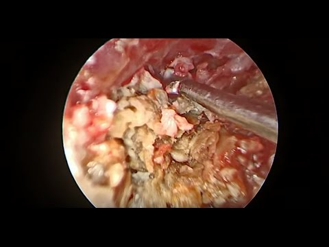 PAINFUL EAR INFECTION - EAR WAX REMOVAL - Dr Paul 2017