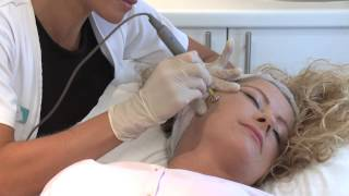 Pelleve Radio Frequency Treatment at the Aesthetic Skin Centre thumbnail