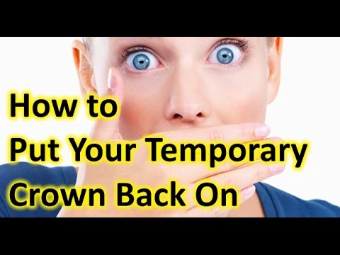 What To Do If My Temporary Crown Fell Off *How To Cement Your Crown That Fell Out Or Came Off