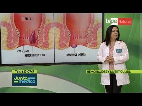 especialista en hemorroides lima