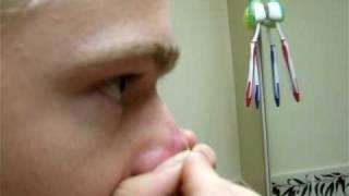 Repeat youtube video Owen Volcano Pimple