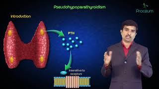 End-organ resistance to PTH ( pseudohypoparathyroidism ) - USMLE Pathology