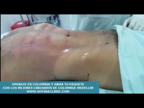 Cirugia plastica Colombia Medellin - sofina clinic