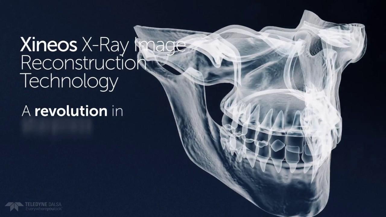 from Emmitt x rays of transgender reconstruction