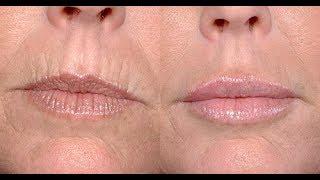 видео Как убрать морщины вокруг губ и над верхней губой