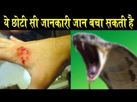 Rajiv Dixit - साँप के काटने पर तुरंत करे ये उपाय ! ये सस्ता उपचार कभी भी आपके काम आ सकता है