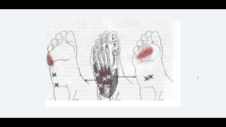 Мышцы стопы. Анатомия + триггерные точки. 2014 год.
