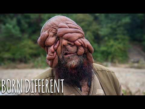 They Call Me 'The Man With No Face' | BORN DIFFERENT