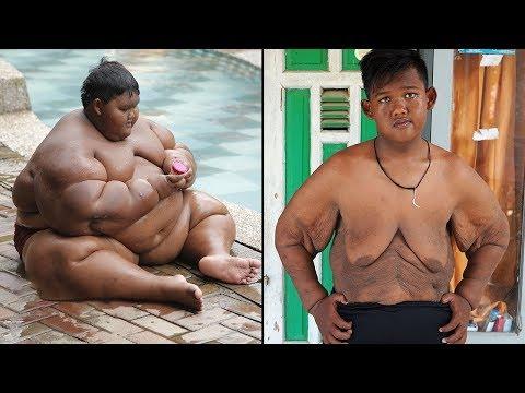 Самый Тяжелый Мальчик в Мире Сбросил 100 кг!